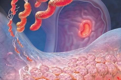 Язвенная болезнь: диагноз по характеру боли