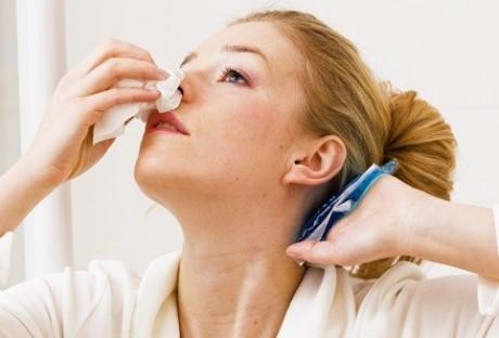 Носовое кровотечение: почему возникает и как устранить