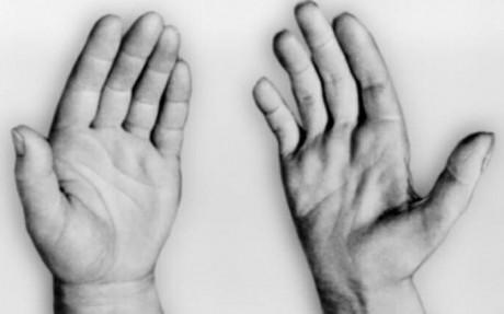 Как проявляется мышечная дистрофия у мужчин