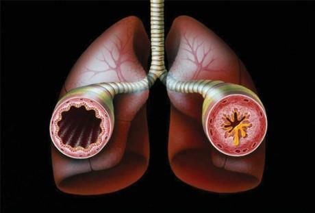 Почему развивается бронхиальная астма