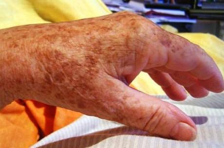 Возрастная пигментация как симптом