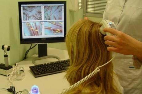Биологическое лечение может облегчить псориаз