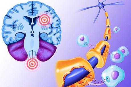 Лечение засоренных вен облегчает множественный склероз