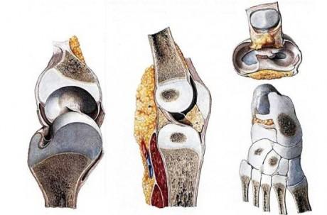 Особенности строения ткани костей у новорожденного