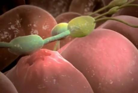 Что могут означать увеличившиеся лимфоузлы