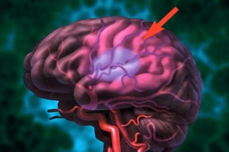 Чем опасны кровоизлияния в мозг