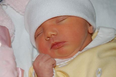 Формы гемолитической болезни новорожденных