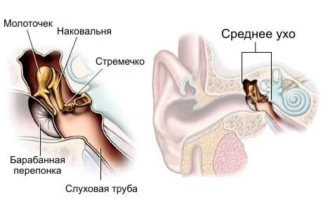 Аномалии развития среднего и внутреннего уха
