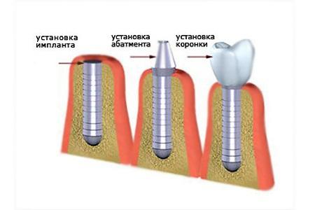 Что такое субпериостальные имплантаты