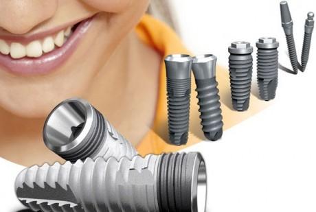 Разновидности зубных имплантантов
