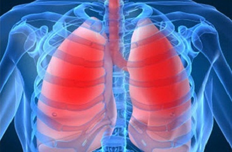 Где чаще всего встречают рак легких