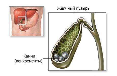 холестерин повышен желчь
