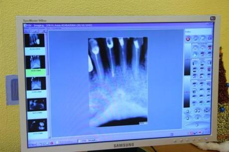 Плюсы рентгенографии