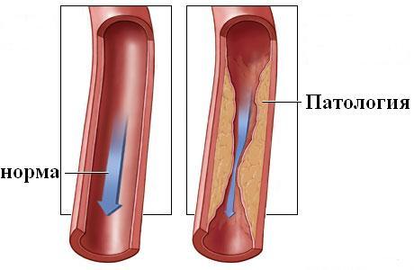 Виды патологической извитости артерий