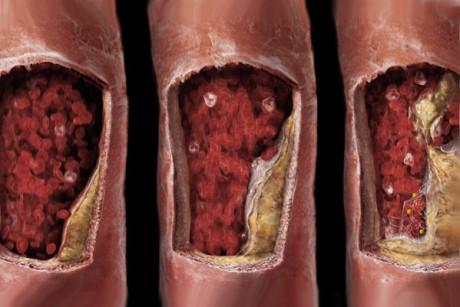 При тромбоэмболиях сосудов брюшной полости