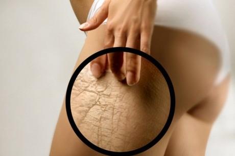 Самые распространенные изменения внешнего вида кожи