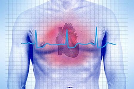 Почему возникает остановка сердца