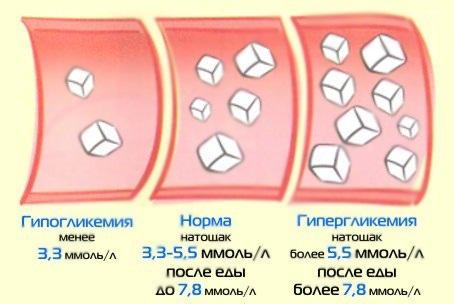 Kui madala veresuhkru sümptomid puuduvad