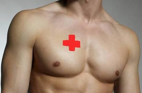 Рак груди у мужчин: факторы риска и профилактика