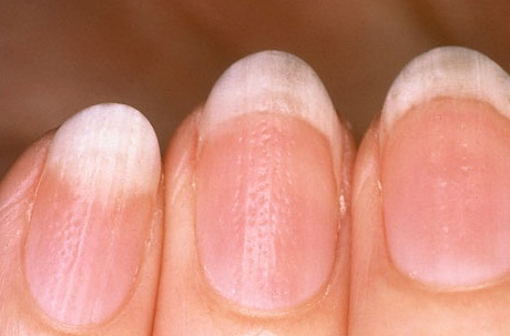 О чем расскажет состояние ногтей и волос