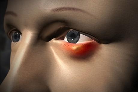 Как вылечить глазной ячмень