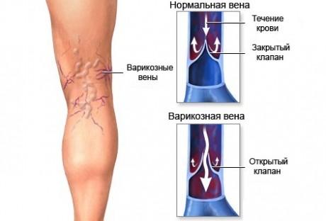 Причины развития варикоза