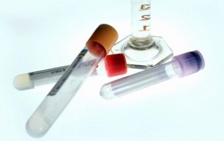 Птичий грипп H5N1: риски, симптоматика, лечение