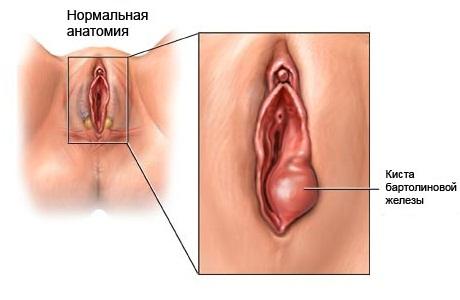 Здоровое влагалище