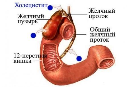 Холецистит: симптомы, причины, лечение