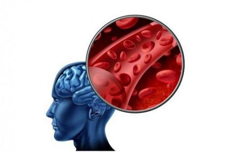 Что представляют собой инсульт и микроинсульт
