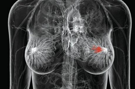 Новая диагностика находит рак молочной железы без радиации