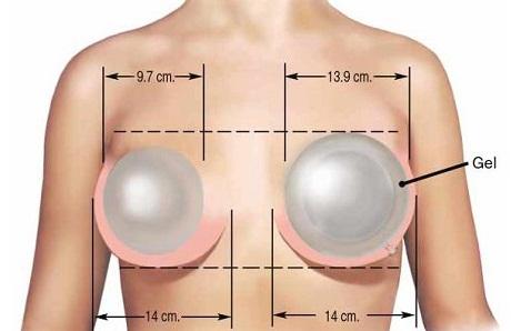 Увеличение груди: что нужно знать