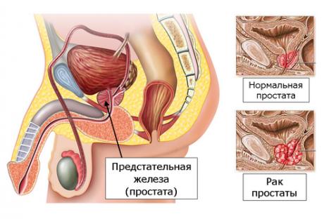 Лечить аденому простаты асд 2