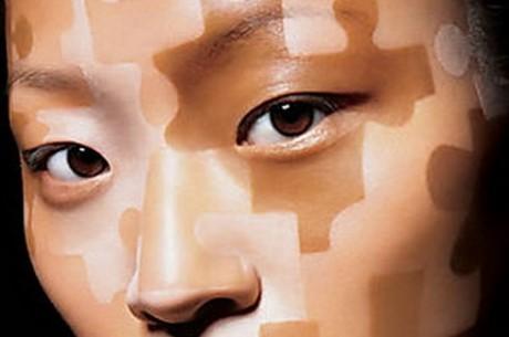 Пятна на коже: особенности