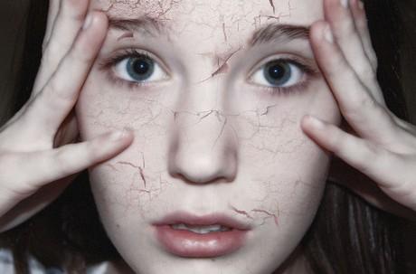 Что такое дерматофитоз