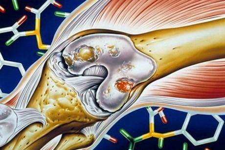 «Носовики» спасут пациентов с самыми тяжелыми артритами