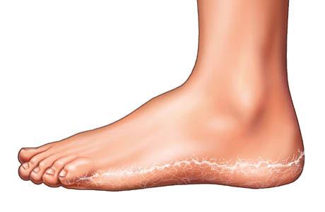 Грибок стопы: что увеличивает степень риска