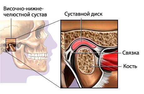 Дисфункция височно-нижнечелюстного сустава: особенности