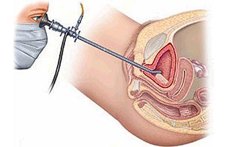 Как и зачем проводят цистоскопию