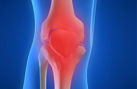 Различают артриты воспалительные и обменно-дистрофические