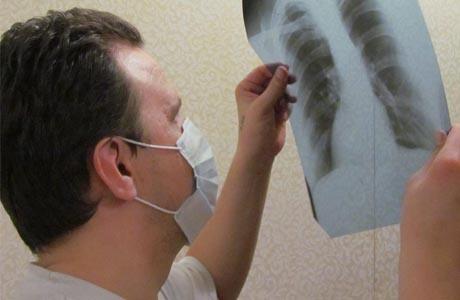 Туберкулез заразен и очень опасен