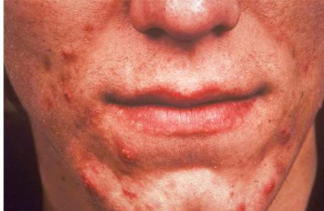 Заболевание обезображивает кожу