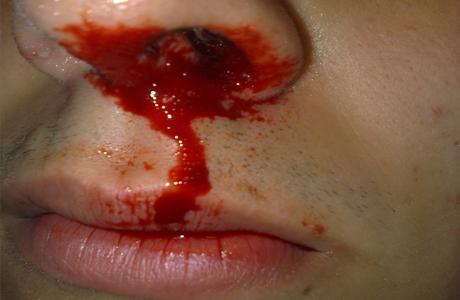 Иногда кровотечение бывает довольно массивным