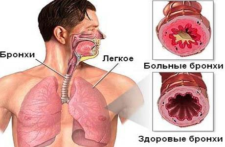 бронхиальная астма у детей оформление инвалидности