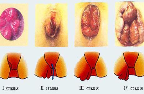 Геморрой кровит при беременности