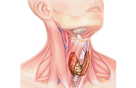 Можно вылечить узлы щитовидной железы без операции