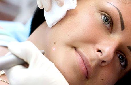 Как удалить новообразования на коже?