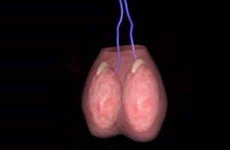 Что такое сперматоцеле