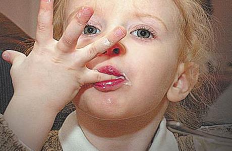 лечение от глистов чесноком
