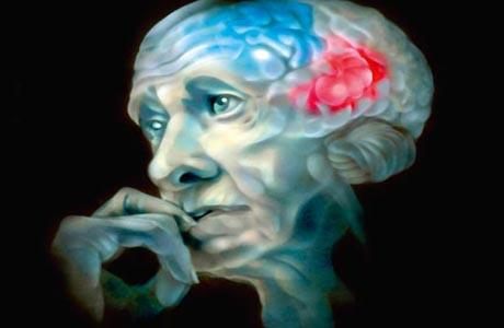 Нарушение сна предупредит о формировании болезни Альцгеймера